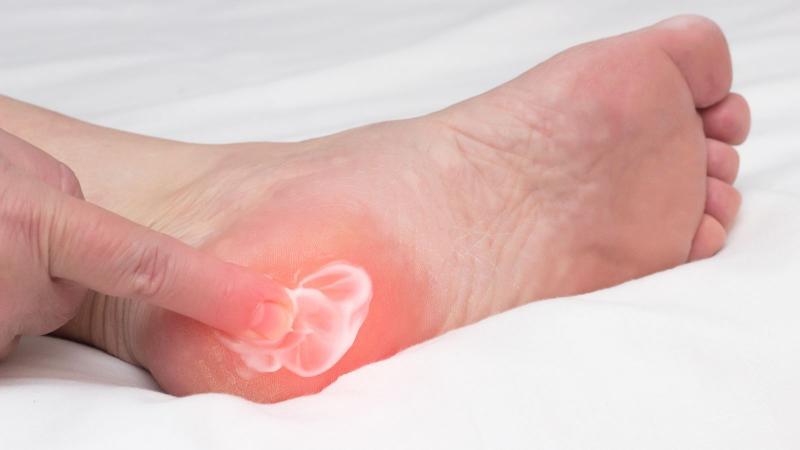 'Topuk Dikeni' teşhis ve tedavisinde önemli 8 madde