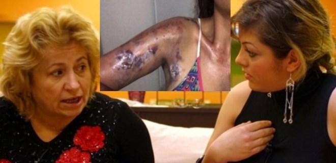 Evlilik programıyla tanınan ünlü isim feci şekilde yaralandı!