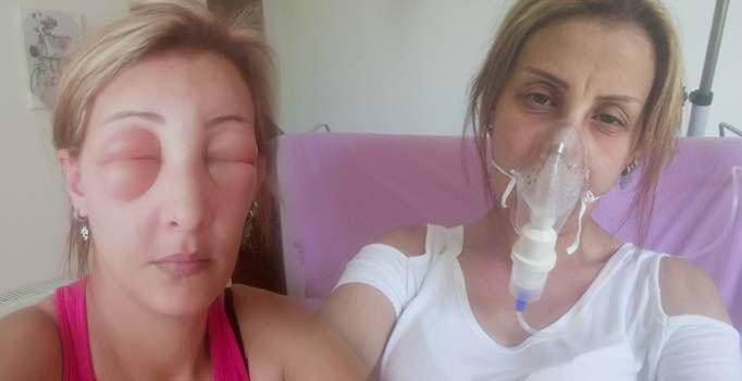Kuaförde saçları 7 saat boyunca boyalı bırakılan kadın ölümden döndü