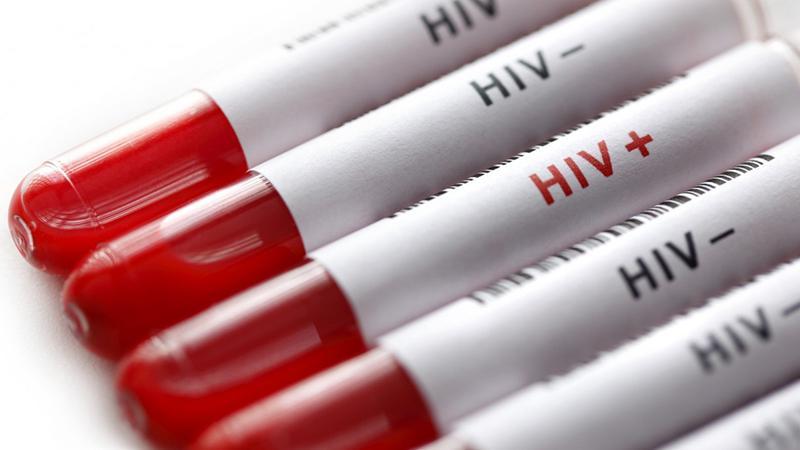 HIV tarih mi oluyor: Hayvanlar üzerinde başarılı oldu